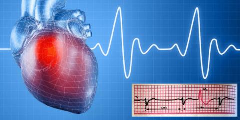 Фиксация и анализ экстрасистол на ЭКГ поможет уточнить диагноз