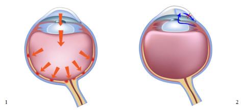 Типы глаукомы, патологии для которой характерен высокий офтальмотонус
