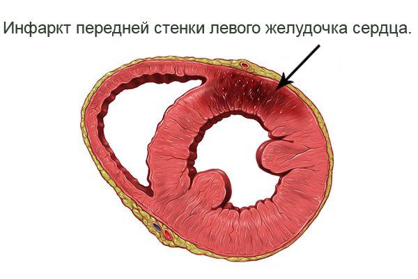 Тахикардия – симптом инфаркта миокарда