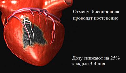 Бросать пить бисопролол резко нельзя – возможно развитие тяжелой аритмии или инфаркта