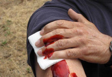 Чем выше степени кровопотери при травме, тем выше частота сердечных сокращений и опасней приступ экстремальной тахикардии