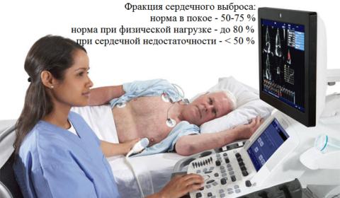 Для определения показателей насосной функции миокарда нужна эхокардиограмма