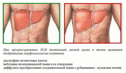 Последствия увеличения печени при хронической сердечно-сосудистой недостаточности