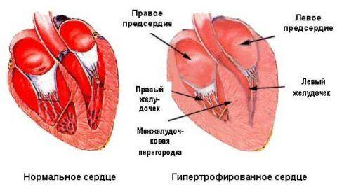 Суправентрикулярная тахикардия локализуется в области предсердий