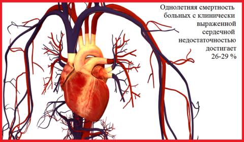 В России от декомпенсации сердечно-сосудистой недостаточности ежегодно умирает 990 тысяч человек
