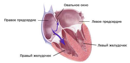 Отрытое овальное окно в сердце на поперечном разрезе
