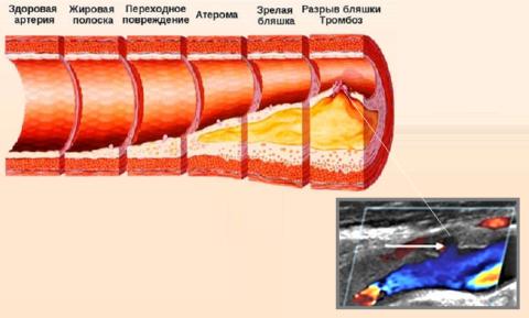 Схема стадий формирования атск-бляшки и УЗИ кровеносных сосудов с атеросклерозом