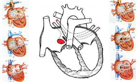 Врожденные аномалии расположения устьев легочных вен (в норме – все 4 находятся в левом предсердии)