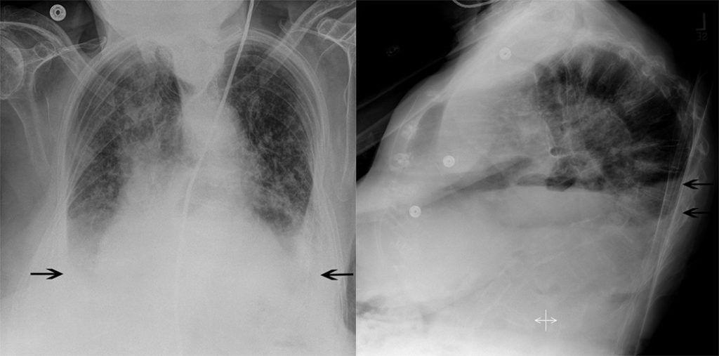 Трикуспидальная недостаточность на рентгеновском фото