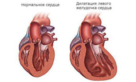 Дилатация – аномальное расширение сердечных камер