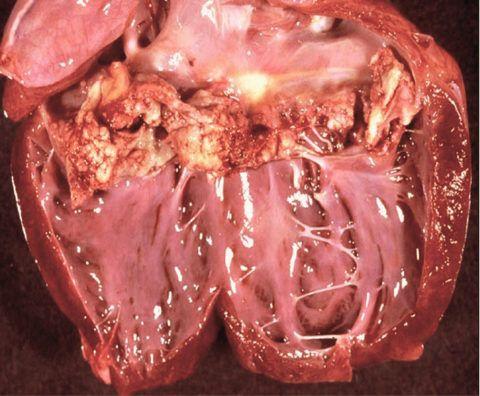 На фото последствия инфекционного эндокардита – одной из причин дилатации