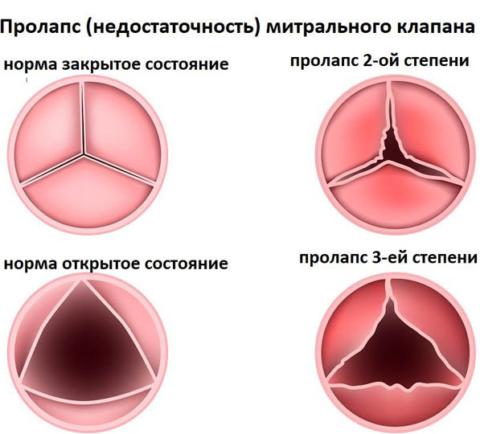Варианты недостаточности трехстворчатого клапана