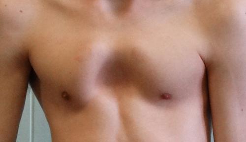 Одна из причин гипертензии в малом круге кровообращения – врожденная деформация грудной клетки