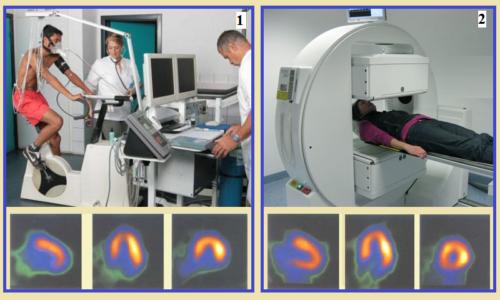 Сцинтиграфия: изображение срезов сердца после нагрузки (1) и в покое, спустя 4 часа (2)