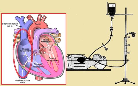 Давление крови в центральных полых венах измеряют только в госпитальных условиях