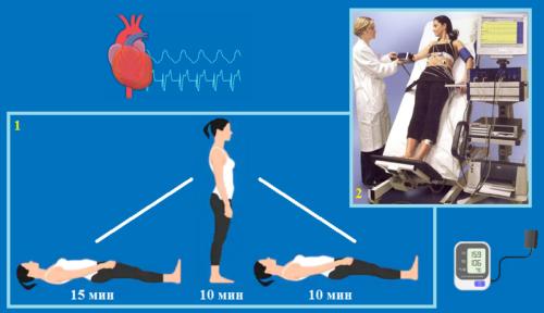 Клиноортостатическая проба: 1 — активная, 2 — пассивная