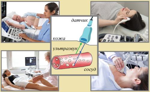 УЗ-допплер сосудов сердца, ног, головы и шеи