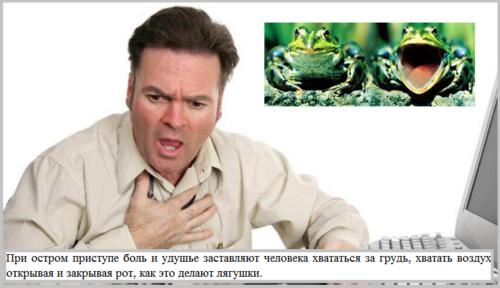 Еще не так давно стенокардию довольно часто называли «грудная жаба»