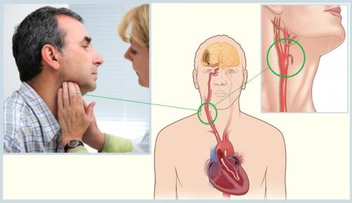 Массаж правого каротидного синуса поддержит кровоснабжение мозга, возможно понизит артериальное давление и пульс