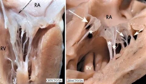 Стрелками обозначены 3 лишние базальные левожелудочковые сердечные «струны»