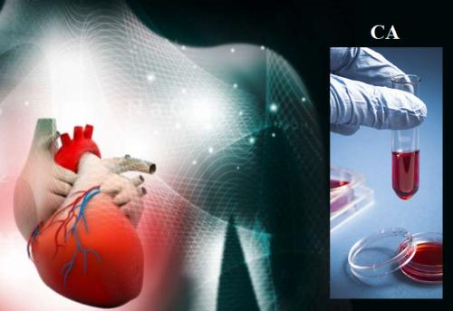 Высокий уровень Ca в сыворотке повышает риск структурных поражений миокарда и развития сердечной недостаточности