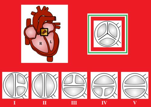 Норма и V типов 2-створчатого аортального клапана (I ― самый распространенный)