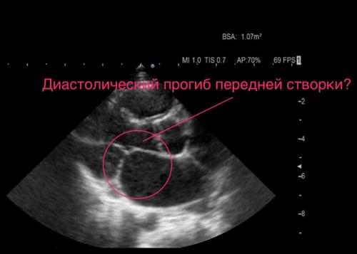 При подозрении на ДАК после ЭКГ желательно провести ЭхоКГ или ультразвуковое исследование сердца