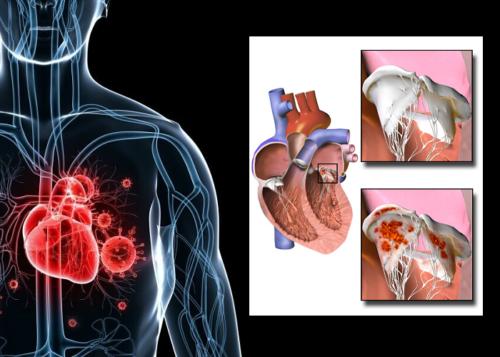 Аортальный двустворчатый клапан может спровоцировать развитие инфекционного эндокардита