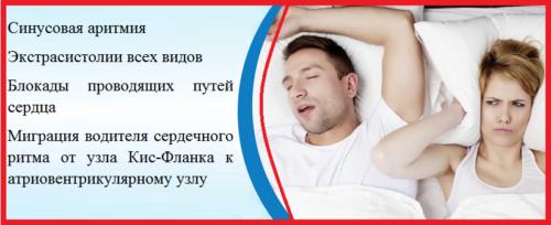 Основные типы нарушения сердечного ритма и проводимости при апноэ и храпе