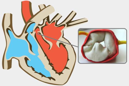 С аномалией 2-створчатый аортальный клапан рождается около 1–2 % населения планеты