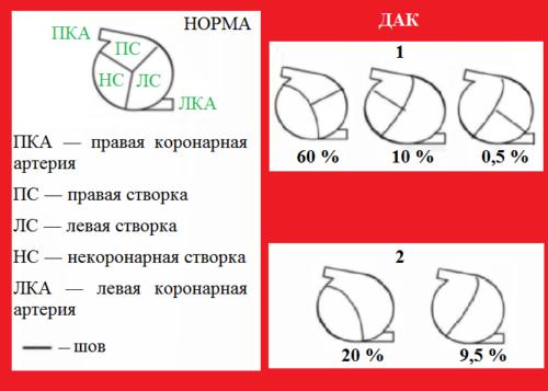 Один из вариантов классификации механических фенотипов створок ДАК