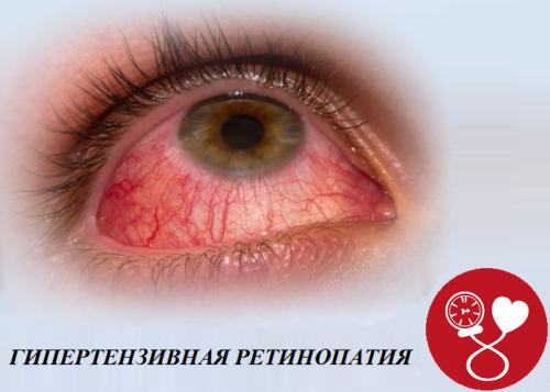 Один из органов, повреждающийся при артериальной гипертонии третьей степени — глаза