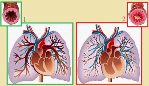 Причиной синдрома хронического легочного сердца может быть длительное обструктивное сужение бронхов (2)