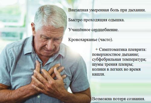 Типичные клинические признаки синдрома подострого легочного сердца